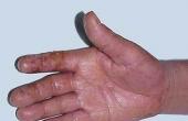 接触性皮炎.png