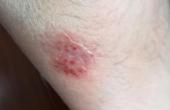 慢性湿疹.png